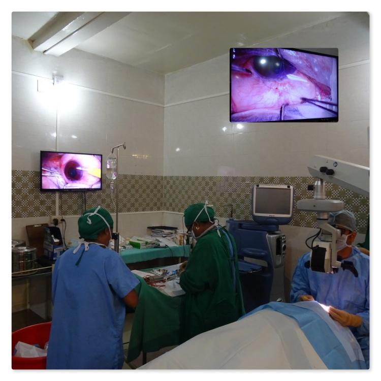 Jayant Glaucoma Surgery