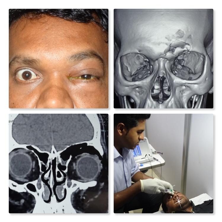 Orbital Emphysema Collage